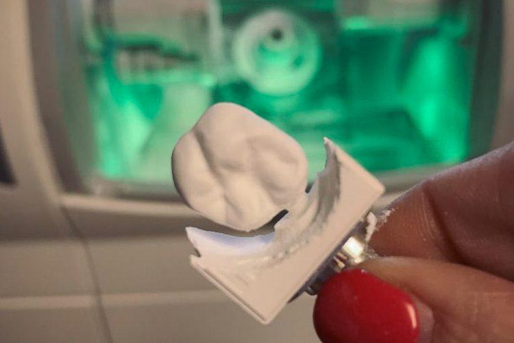 Fiser Family Dental Care CEREC